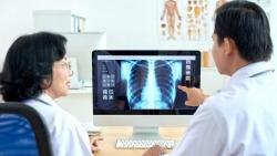 Triển khai giải pháp AI - VINDR trong chuẩn đoán hình ảnh y tế